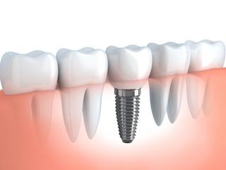 Dental Implant Diagram | Dentist Middletown NJ
