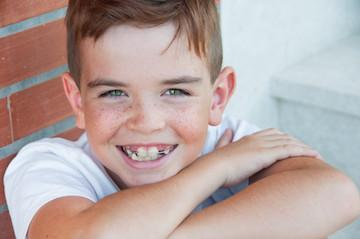 traditional braces | middletown dental | middletown
