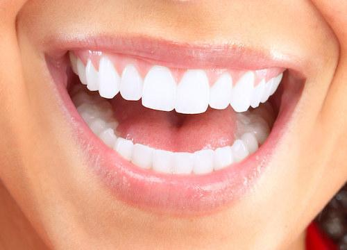 woman smiling with dental crowns in middletown