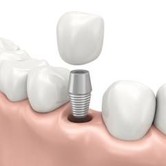 Implant Diagram | Dentist Middletown NJ
