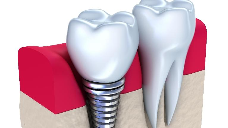 Dental Implant Next to a Tooth | Middletown Dental